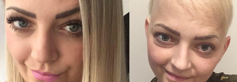 Pomóż mi wygrać walkę z bardzo rzadkim złośliwym nowotworem kory nadnerczy!!