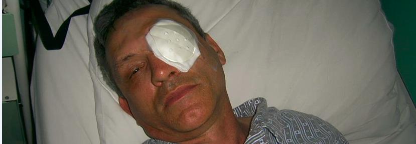 Oko dla Igora!
